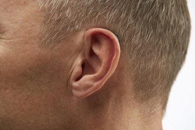 Receiver in the ear (RITE/RIE/RIC)
